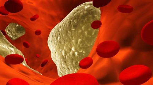 Мифы о влиянии холестерина на болезни сердца и сердечнососудистой системы