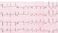 Torsade de pointes. Бессимптомный пациент на эритромицине отмечал удлинение QT на основании ЭКГ. У пациента была сильная гипомагнезия и гипокалиемия. На картинке показывается пример повторяющихся неосновных точек Torsade, которые произошли через несколько часов после проведения ЭКГ. С прекращением приема эритромицина и агрессивным избытком магния и калия не произошло никаких дальнейших делений Torsade, а QT-интервал вернулся к норме.