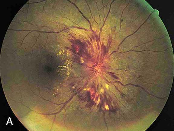 Отек диска зрительного нерва. Обратите внимание на отек оптического диска с размытыми краями.