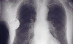Неисправность кардиостимулятора