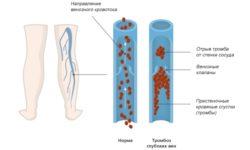 Тромбоз глубоких вен — симптомы и профилактика