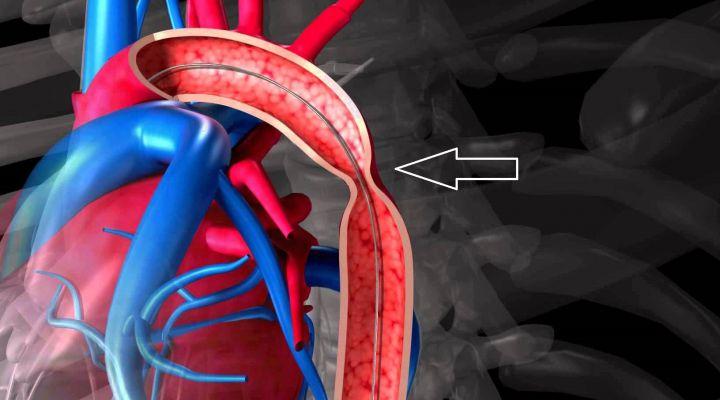 Коарктация аорты: причины, симптомы, методы лечения