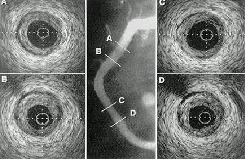 Пример изображения внутрисосудистой ультрасонографии при чрескожной транслюминальной коронарной ангиопластике