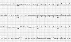Типичная электрическая альтернация QRS. Обратите внимание, что вольтаж QRS низкий.
