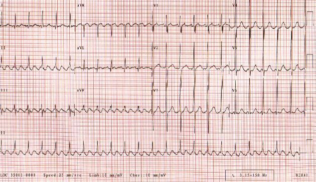 Трепетание предсердий. Частота сердечных сокращений у пациента составляет приблизительно 135 уд / мин при проводимости 2: 1. Обратите внимание на пилообразную структуру, образованную волнами флаттера.
