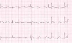 Стадия 1 электрокардиографических изменений у больного с острым перикардитом.