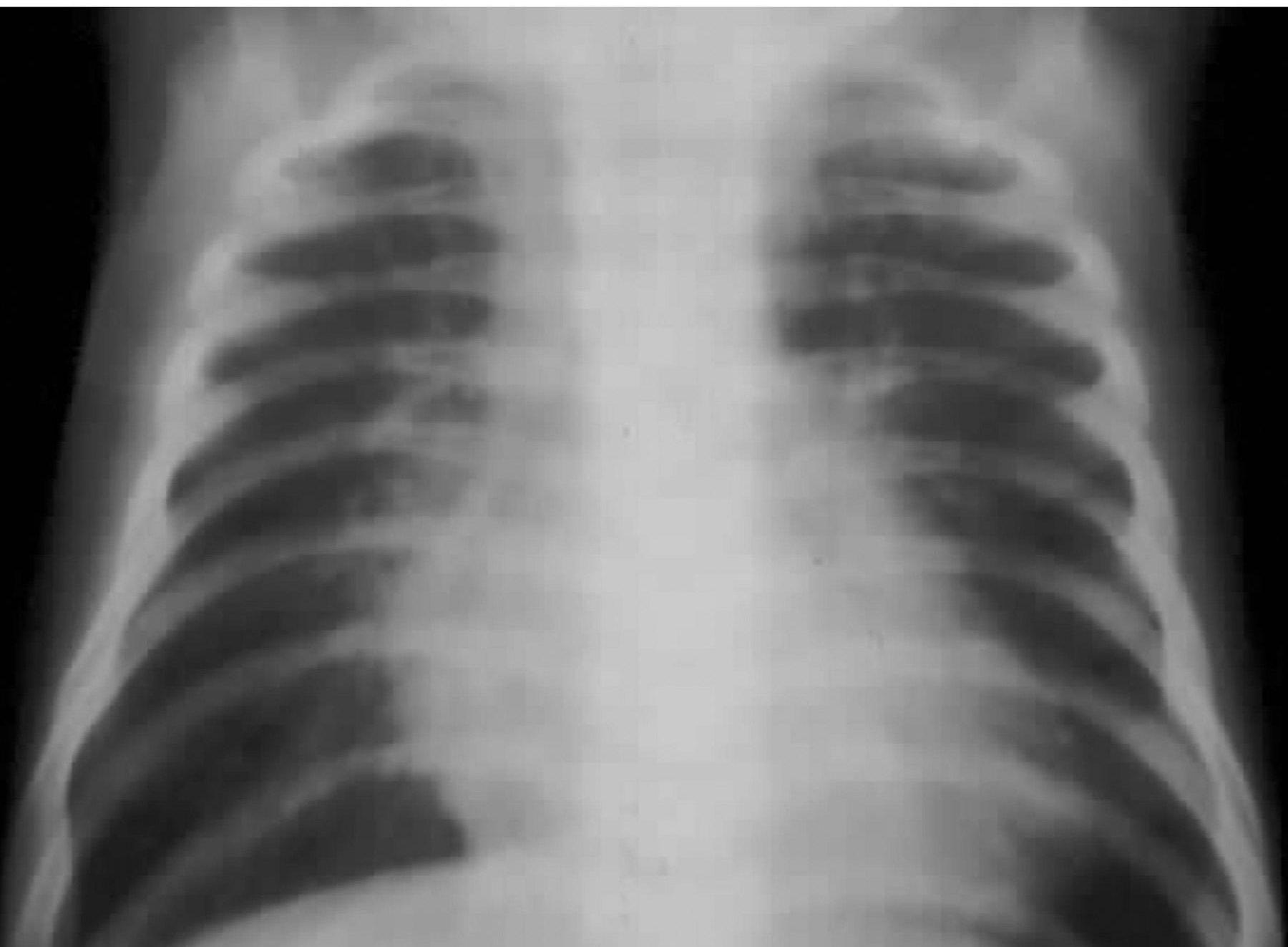 Трикуспидальная атрезия. Рентгенограмма лобной грудной клетки у ребенка с трикуспидальной атрезией и нерестриктивным дефектом межжелудочковой перегородки.