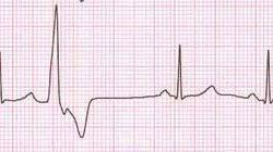 Желудочковые преждевременные комплексы (ПЖК). Обратите внимание, что ПЖК являются отдельными и что после каждого комплекса происходит компенсационная пауза. На рисунке бессимптомные идиопатические ПЖК, происходящие из правого желудочка.