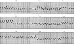 Эта электрокардиограмма (ЭКГ) демонстрирует быструю мономорфную желудочковая тахикардия (VT), 280 уд / мин, связанная с гемодинамическим коллапсом. Трассировка была получена у пациента с тяжелой ишемической кардиомиопатией во время электрофизиологического исследования.