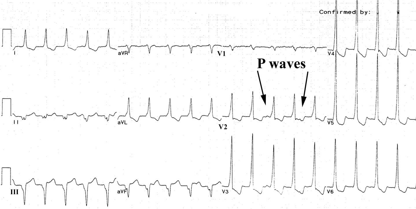 Эта электрокардиограмма показывает медленную мономорфную желудочковую тахикардию, 121 уд / мин, у пациента со старым инфарктом миокарда нижней стенки и хорошо сохранившейся функцией левого желудочка (фракция выброса - 55%).