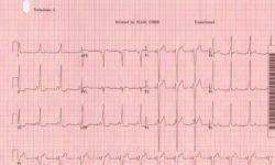 Классическая электрокардиограмма Wolff-Parkinson-White с коротким интервалом PR, QRS> 120 мс и дельта-волной