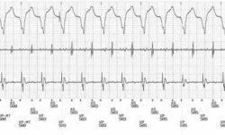 Телеметрическая ЭКГ-трассировка с поверхностным отведением II (сверху) и внутрисердечными электрограммами (предсердная электрограмма [центр] и желудочковая электрограмма [нижняя]) и канал маркера (внизу), показывающий опосредованную кардиостимуляцией тахикардию. Интракардиальные маркеры показывают, что ретроградные Р-волны, помеченные как AS для предсердного события, происходят через 280 миллисекунд после ритмов в желудочках, обозначенных VP.