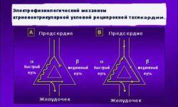 Электрофизиологический механизм атриовентрикулярной узловой реципрокной тахикардии.