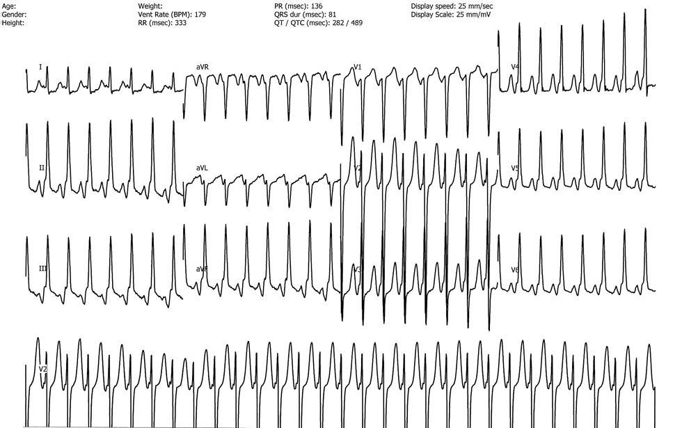 Атипичная атриовентрикулярная узловая re-entry тахикардия. Зачастую инвертированная Р-волна наблюдается непосредственно перед комплексом QRS. Здесь представлена активация задней перегородки вследствие антеградной проводимости через быстрый путь и ретроградную проводимость через медленный путь AV-узла.