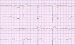 Электрокардиограмма пациента с полной блокадой сердца