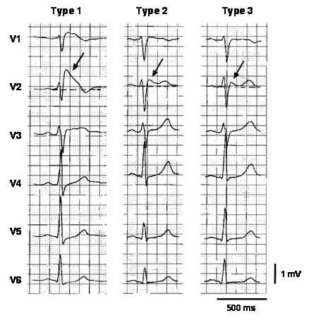 Три типа поднятия сегмента ST при синдроме Бругада, как показано в грудных отведениях на ЭКГ у одного и того же больного в разное время. На левом фрагменте показан образец ЭКГ 1 типа с ярко выраженным подъемом J-точки (стрелка), сегмент ST по типу «свод» и инвертированная T-волна в отведениях V1 и V2. Средний фрагмент иллюстрирует образец 2 типа с сегментом ST по «седловидному» типу, увеличенным на> 1 мм. На правом фрагменте показан образец 3 типа, при котором сегмент ST повышен, 1 мм., модель ЭКГ типа 1 является средством диагностики синдрома Бругада.