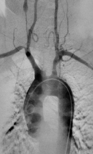 Полная окклюзия левой общей сонной артерии у 48-летней женщины с болезнью Такаясу.