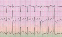 ЭКГ показывает частые, унифокальные желудочковые экстрасистолы с фиксированным интервалом между эктопическим ритмом и предыдущим сокращением. Они приводят к полной компенсационной паузе; интервал между двумя синусовыми биениями, окружающими ПВХ, в два раза превышает нормальный интервал R-R. Это открытие указывает на то, что синусовый узел продолжает шагать в своем нормальном ритме, несмотря на экстрасистолы, который не может сбросить синусовый узел.