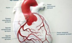 Коронарная недостаточность: что такое, причины, симптомы, лечение