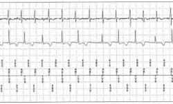 Пейсмекерный синдром без кардиостимулятора. Отображаются сохраненные данные из двухкамерного кардиостимулятора. Показывана предсердная тахикардия с АВ-блокадой второй степени, которые вместе создают непрерывную атриовентрикулярную диссинхронность, приводящую к симптомам синдрома кардиостимулятора, включая усталость, головокружение и сильную одышку. Обратите внимание, что кардиостимулятор не участвует в создании дисфункции. Верхняя трассировка: предсердная электрограмма. Среднее отслеживание: желудочковая электрограмма. Нижняя трассировка: маркеры каналов. Ab = предсердное событие в период предвентрикулярного гашения, AR = предсердное событие в постврикулярном рефрактерном периоде; VS - Желудочковое ощущение.