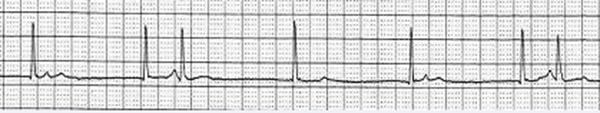 Эта полоса ритма показывает интерферентную атриовентрикулярную диссоциацию.