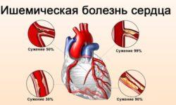 Ишемическая болезнь сердца (ИБС): что такое, симптомы, причины, лечение