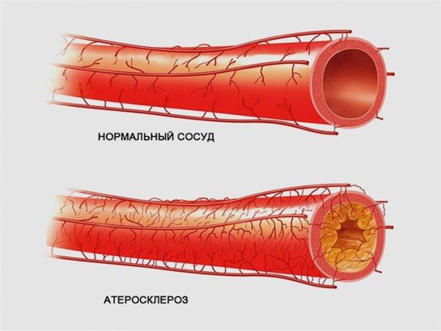 Профилактика и лечение атеросклероза, атеросклероз сосудов нижних конечностей