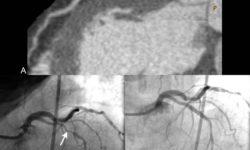 КТ-ангиография и катетеризация: Мультипланарная реконструкция (MPR) КТ-изображение (A) демонстрирует тяжелый проксимальный стеноз левой нисходящей (LAD) артерии (стрелка), также продемонстрированный при катетеризации сердца (B) (стрелка).