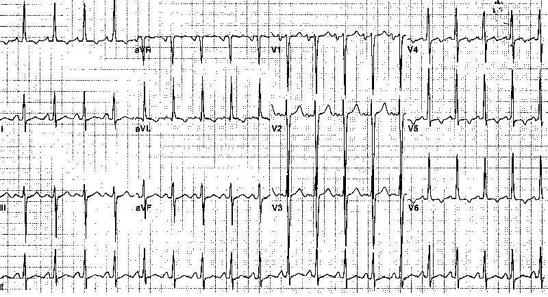 Электрокардиограмма 46-летнего мужчины с давней гипертензией, показывающая аномалию левого предсердия и гипертрофию левого желудочка с деформацией.