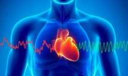 Тахикардия и ее последствия, желудочковая тахикардия
