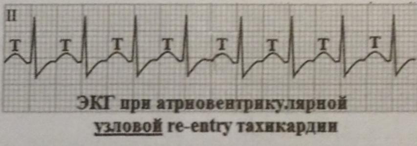 Атриовентрикулярная узловая re-entry тахикардия