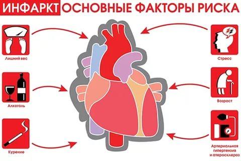 Причины инфаркта миокарда, подозрение на инфаркт, необычные признаки