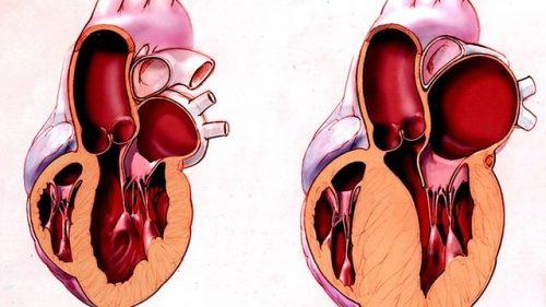 Ремоделирование сердца
