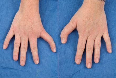 Синдром Холт-Орама: причины, патофизиология, диагностика, лечение