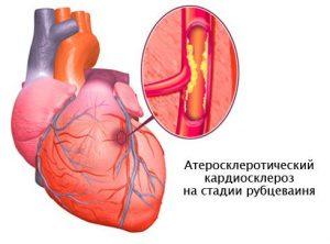 Виды кардиосклероза