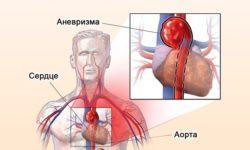 Аневризма синуса Вальсальвы: причины, патофизиология, диагностика, лечение