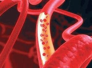 Что такое атеросклероз сосудов, симптомы, диагностика