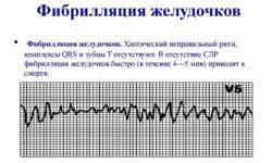 Фибрилляция желудочков (ФЖ)