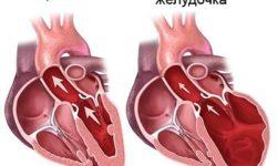 Аритмогенная кардиомиопатия правого желудочка