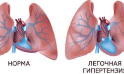 Легочная гипертензия: проявления, симптомы, классификация, лечение