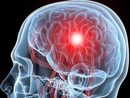 Диагностика инсульта, причины, лечение, профилактика, восстановление