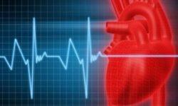 Аритмия: диагностика, осложнения, лечение, синусовая аритмия