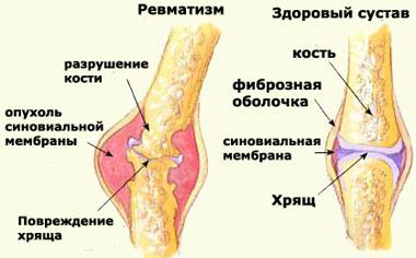 Ревматизм это воспаление суставов результаты лечения суставов в nsp