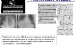 Амилоидоз сердца: причины, патофизиология, диагностика, лечение
