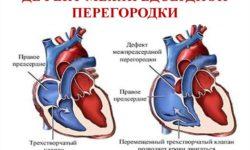 Дефект межпредсердной перегородки: причины, патофизиология, диагностика, лечение