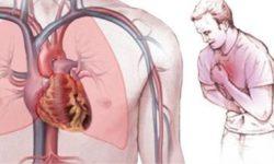 Что такое стенокардия, диагностика, симптомы