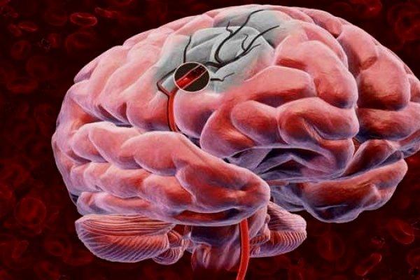 Что такое инсульт мозга, виды, симптомы, диагностика