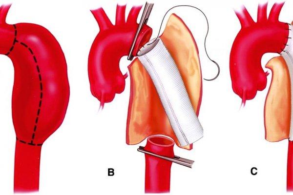 Аневризма аорты: симптомы, причины, осложнения, лечение