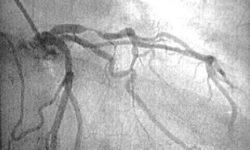 Пациент с острым переднелатеральным инфарктом миокарда, у которого развился кардиогенный шок.