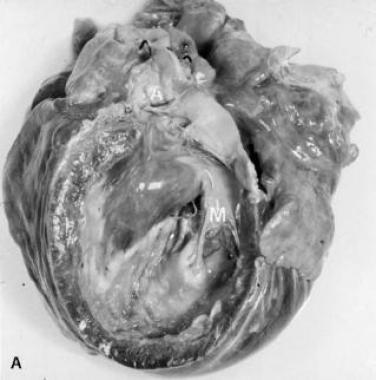 Миокард, а также поражение клапанов при эндокардите Лоффлера. Это изображение показывает плотный фиброз желудочка в посмертно рассеченном сердце.